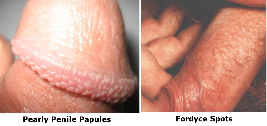 Faq Pearly Penile Papules Ppp