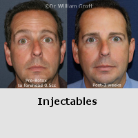 Before and After Gallery - Injectables