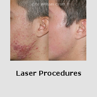 Before and After Gallery - Lasers