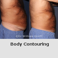Before and After Gallery - Body Contouring
