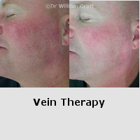 Before and After Gallery - Vein Therapy