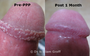 before and after photo of PPP treated patient
